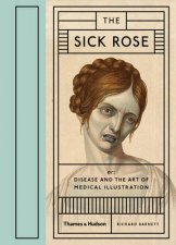 Sick Rose Disease in the Golden Age of Medical Illustration