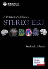 A Practical Approach To Stereo EEG