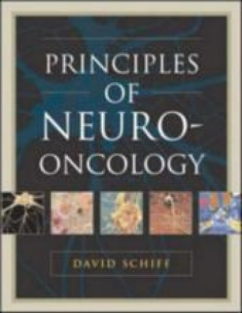 Principles Of Neuro-oncology by David Schiff & Brian Patrick O'Neill